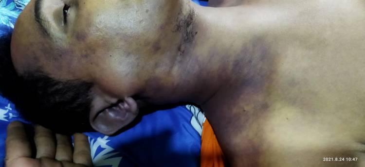 Tahanan Polsek Medan Kota Meninggal Dunia, Polisi Bilang karena Sakit